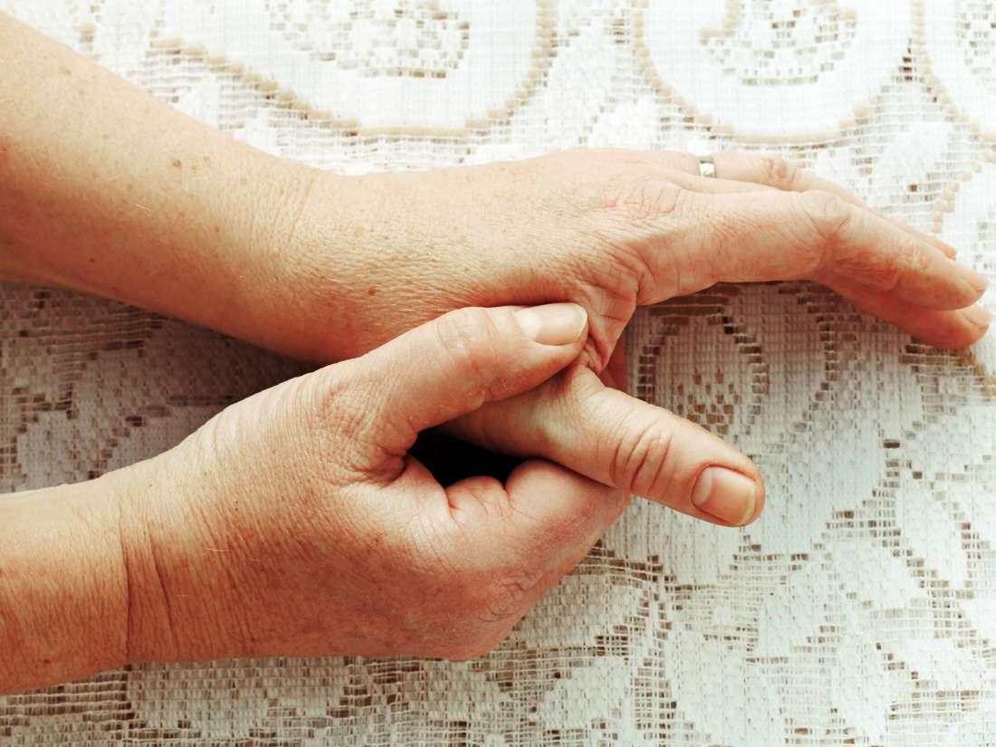 Viêm khớp ngón tay cái: Những điều cần biết
